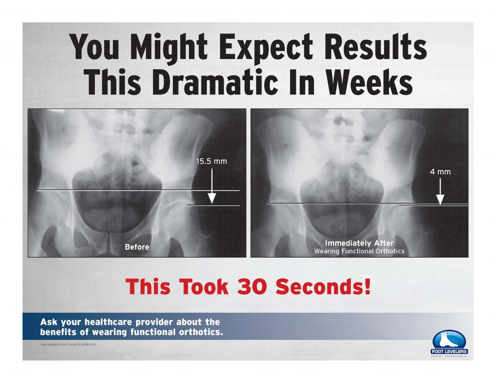 You might expect results this dramatic in weeks - this took 30 seconds!